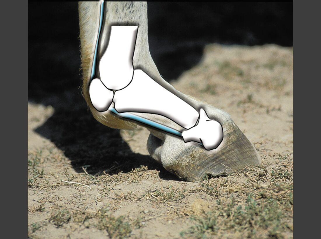 CAV 0708 Osteoporose - Knochen 3