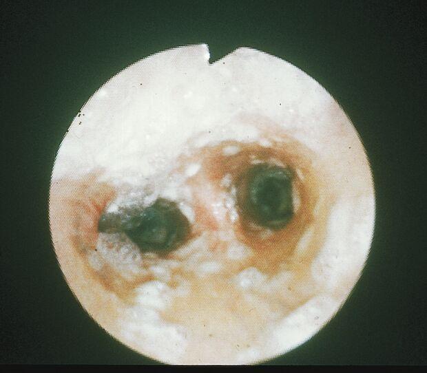 CAV Symptom-Lexikon Influenza